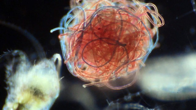Microscopic marine organisms like these are encountering a growing volume of microplastic pollution. Fibers from synthetic clothes are a major source of microplastic pollution.